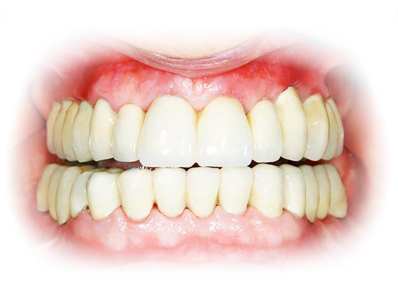 Tandenservice
